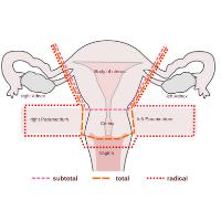 Vaginal Hysterectomy problems Treatment by Dr Siuli Choudhury